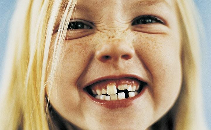I bambini digrignano i denti?