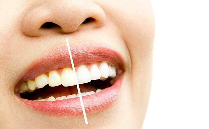 Parte 1 di 3: Tutto ciò che bisogna sapere sullo sbiancamento dei denti