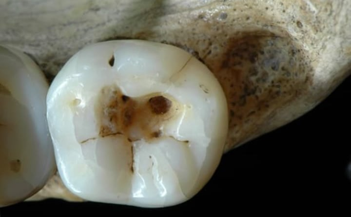 Carie: il primo trattamento dentistico risale a 14.000 anni fa