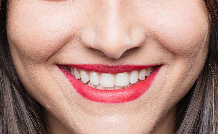Digrigni i denti perchè sei determinato?
