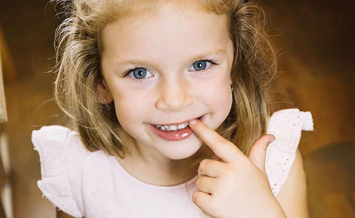 Cosa fare se sospetti che il tuo bambino digrigna i denti?