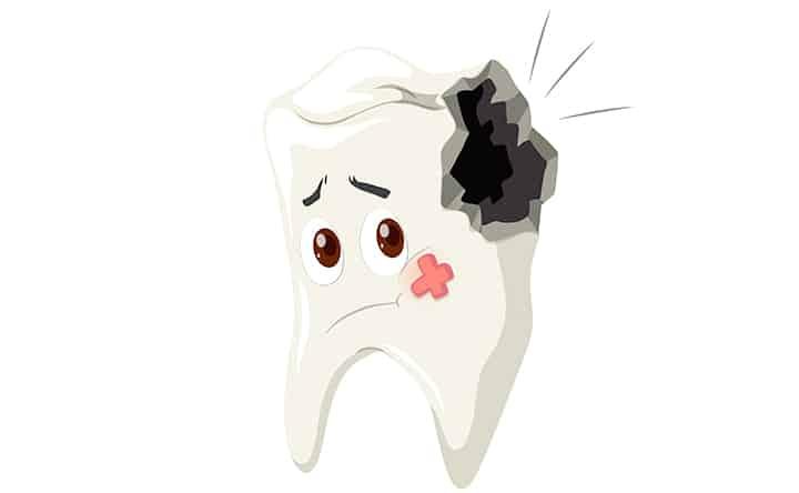 La placca dentale distrutta dalle nanoparticelle, lo studio