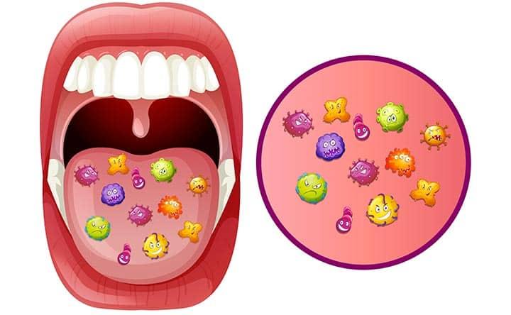 Scoperto un nuovo batterio collegato alla periodontite, lo studio