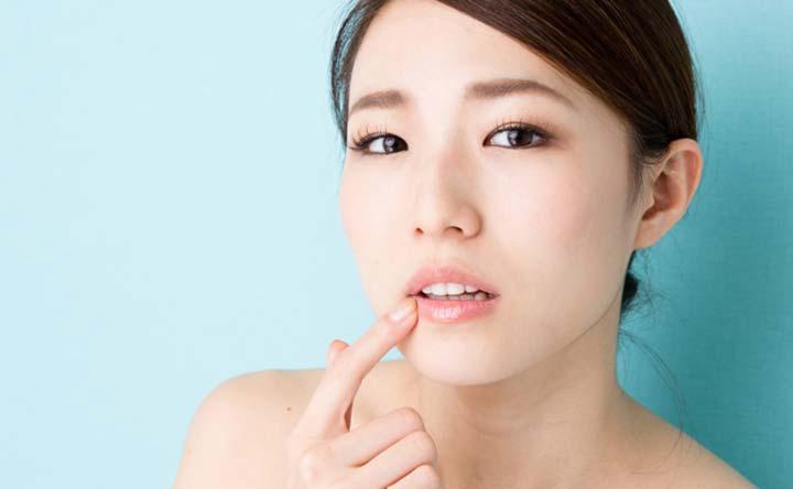 Afte: fastidiose e dolorose ulcerette della bocca